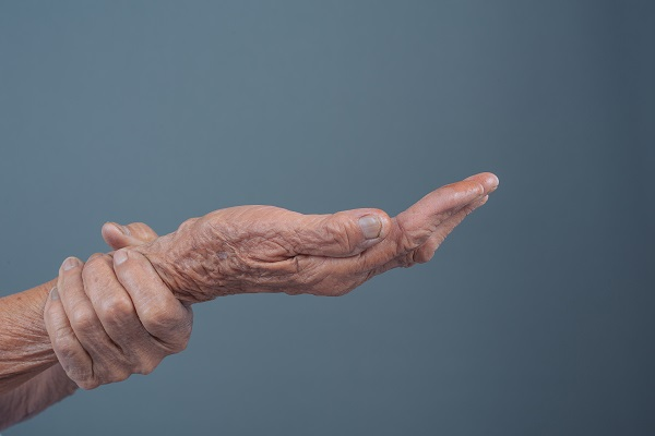 Schuessler Salze bei Arthrose Hand